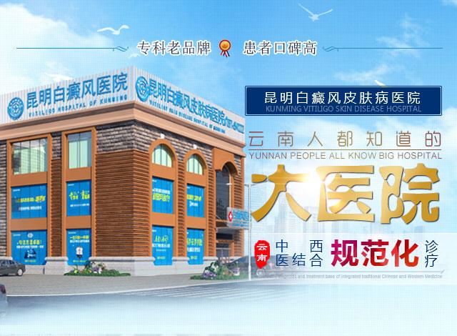 云南白癜风医院